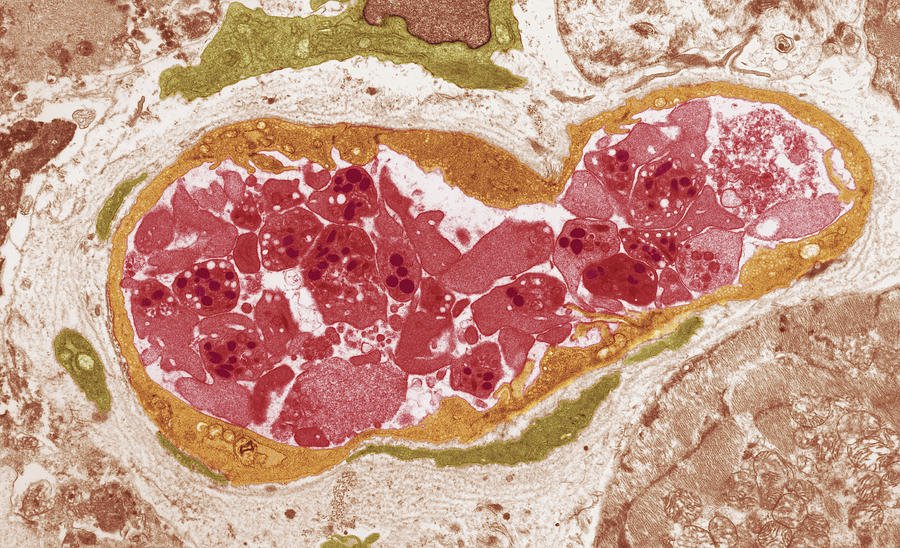 Disorder Photograph - Abnormal Blood Clot, Tem by Steve Gschmeissnercarol Upton