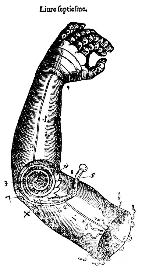 Medical Photograph - Artificial Arm Designed By Ambroise by Science Source