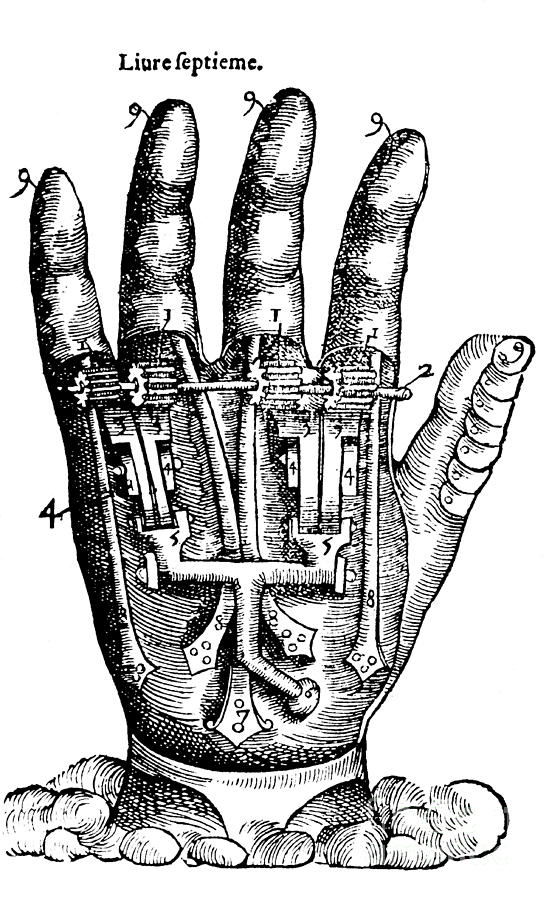 Medical Photograph - Artificial Hand Designed By Ambroise by Science Source