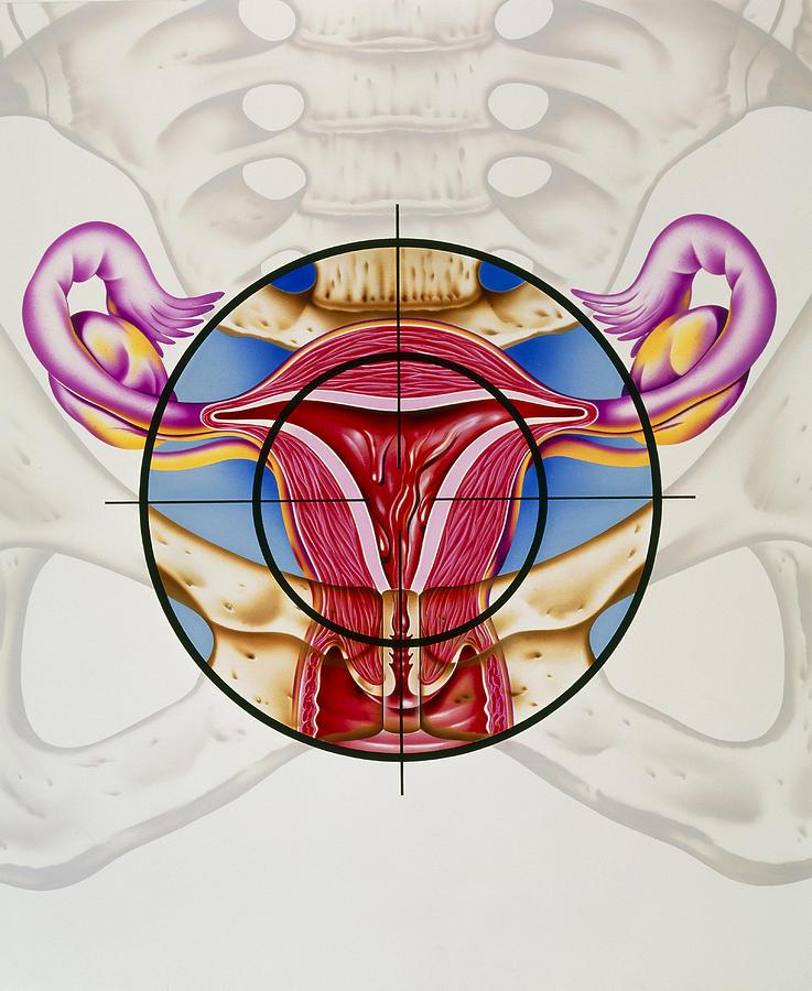 Menstrual Cycle Photograph - Artwork Of The Uterus During Menstruation by John Bavosi