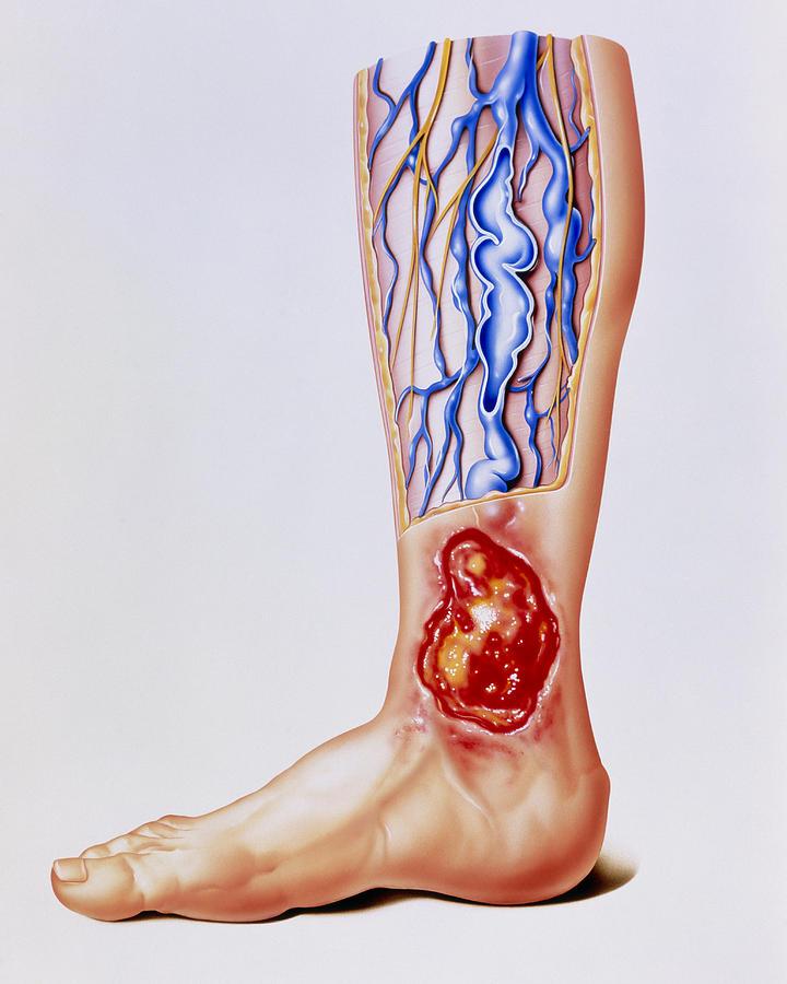 Leg Ulcer Photograph - Artwork Of Varicose Veins & Ulcer On Leg by John Bavosi