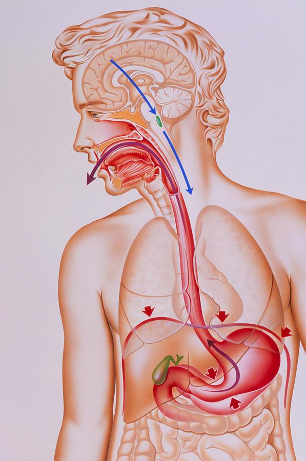 Vomit Photograph - Artwork Of Vomiting Mechanism In Human Body by John Bavosi