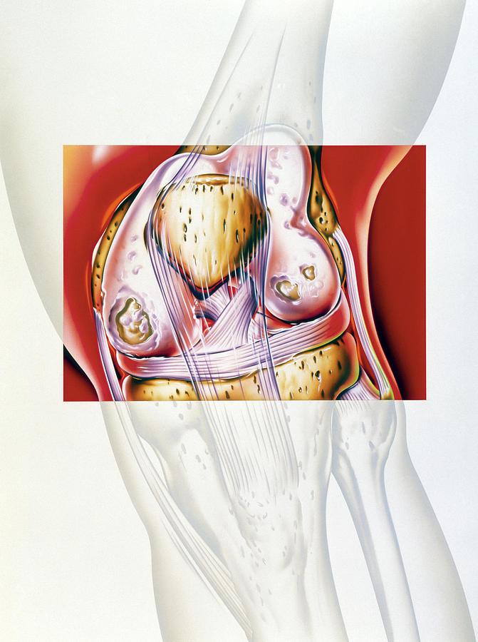 Arthritis Photograph - Artwork Showing Rheumatoid Arthritis Of The Knee by John Bavosi
