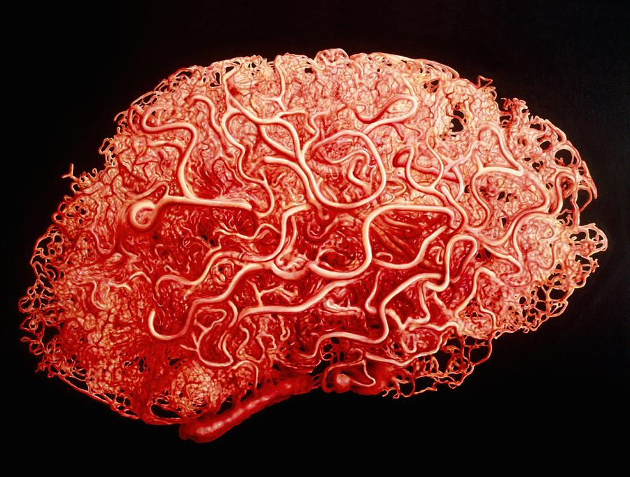 Artwork Showing The Blood Vessels Of The Brain Photograph By Francis Leroy Biocosmos
