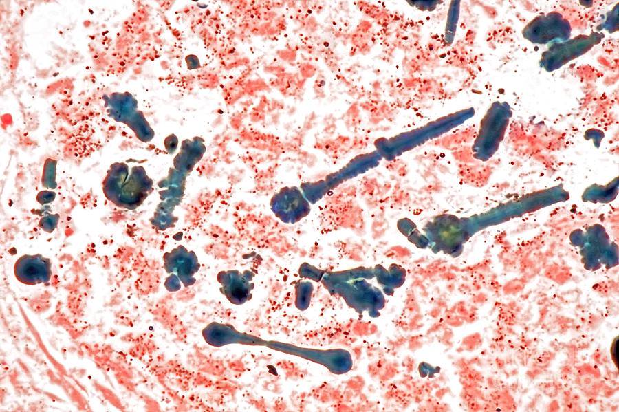 Asbestos Fibers In Lungs : Asbestos bodies in human lung lm photograph by m i walker