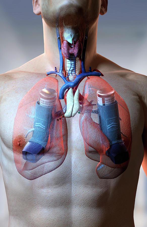 Vertical Digital Art - Asthma by MedicalRF.com