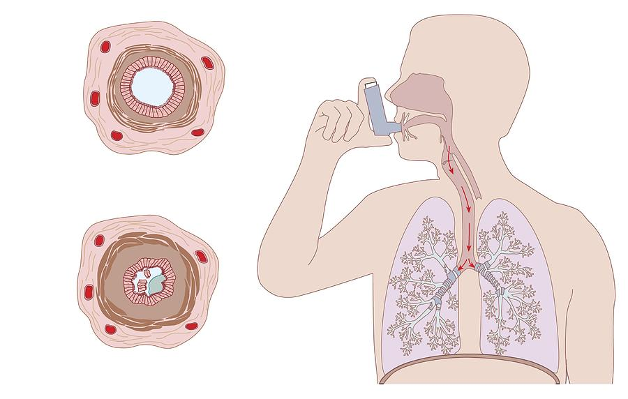 Asthma Photograph - Asthma Pathology And Treatment, Diagram by Peter Gardiner