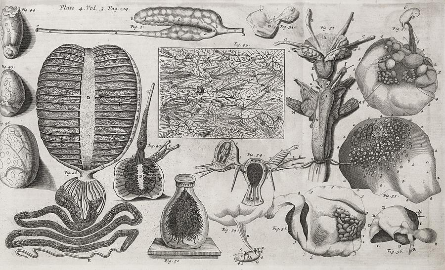 Bladder Stone Photograph - Biological Illustrations, 17th Century by Middle Temple Library
