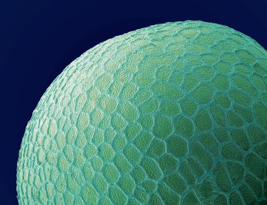 Black Mustard Seed Photograph - Black Mustard Seed, Sem by Steve Gschmeissner