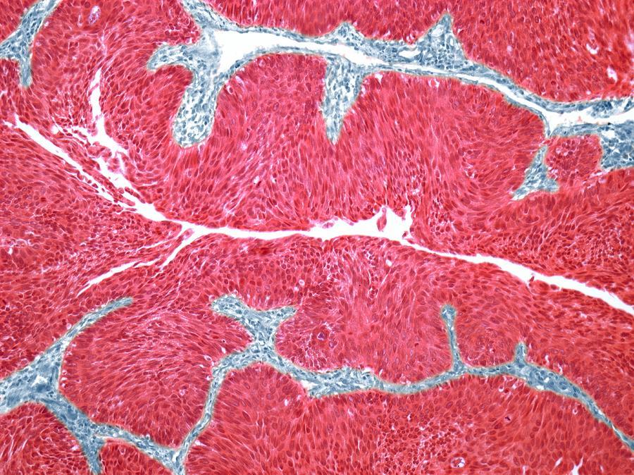 Bladder Cancer, Light Micrograph Digital Art by Steve Gschmeissner