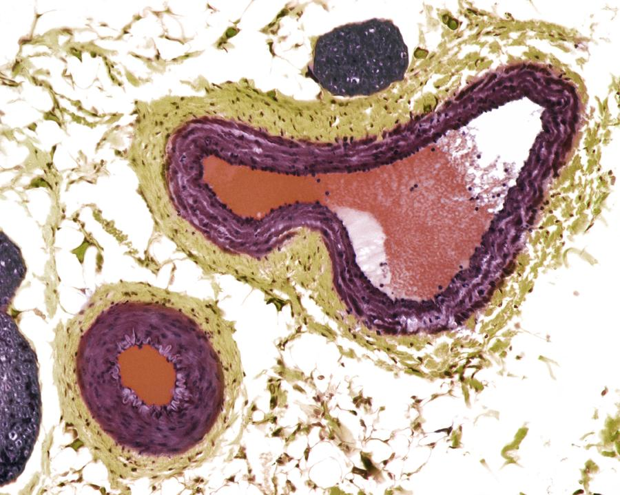 Blood Vessel Photograph - Blood Vessels, Light Micrograph by Steve Gschmeissner