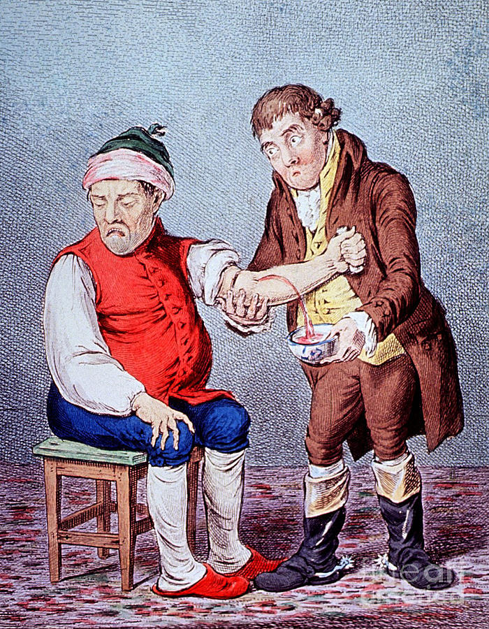 Medical Photograph - Bloodletting-1804 by Science Source