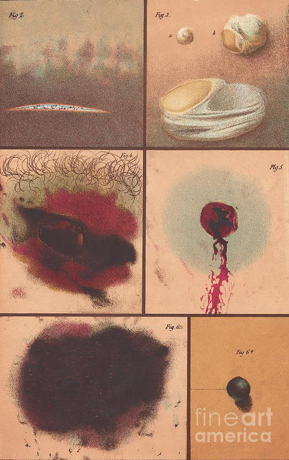 Science Photograph - Bloodstain, Blisters, Bullet Holes, 1864 by Science Source