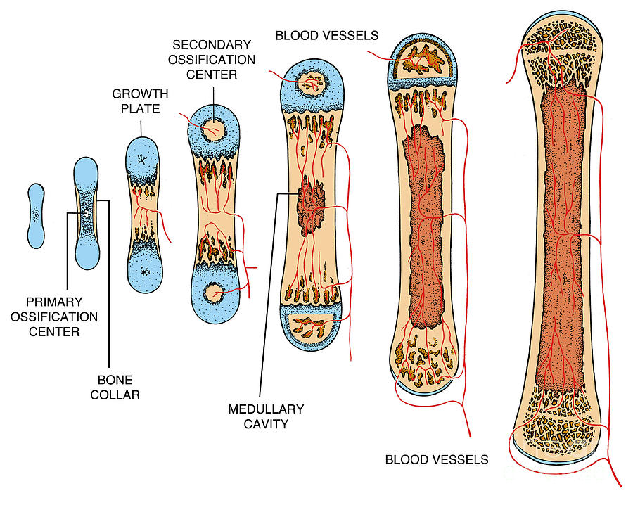 Science Photograph - Bone Growth by Science Source