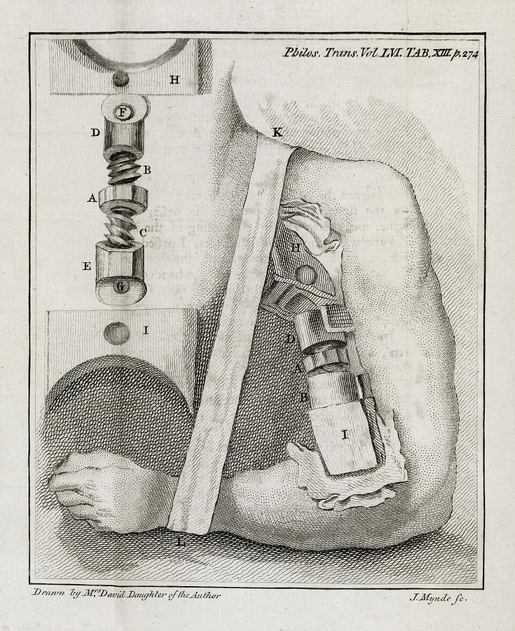 Human Photograph - Bone-setting Mechanism, 18th Century by Middle Temple Library