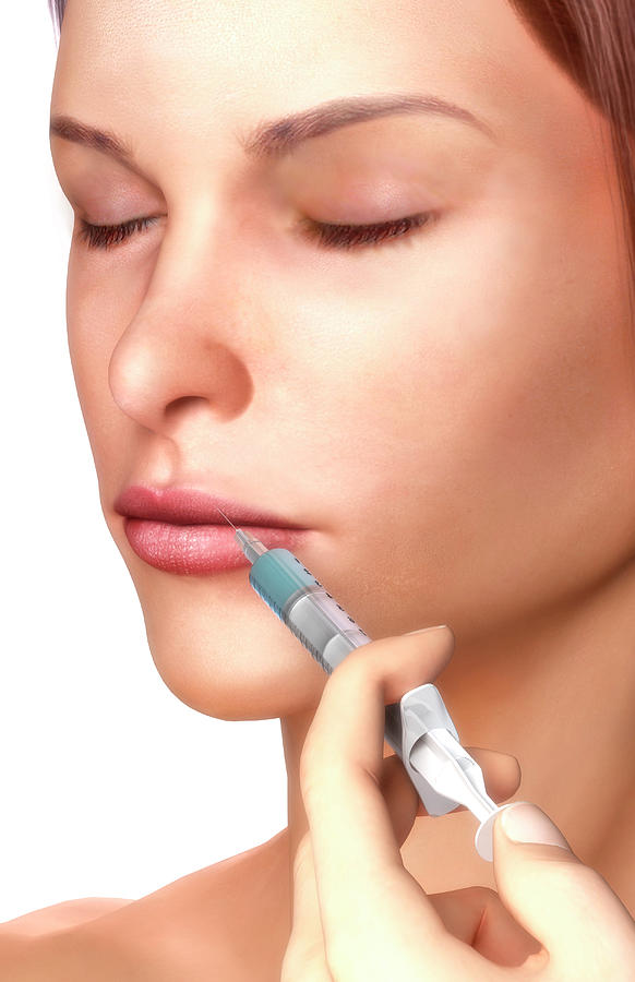 Vertical Digital Art - Botox Injection by MedicalRF.com