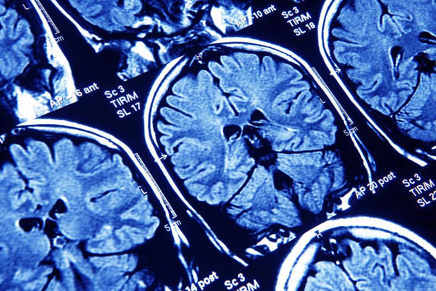 Brain Photograph - Brain Scans, Mri Scans by Pasieka