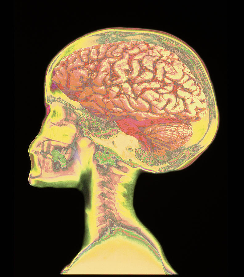 Brain Superimposed On Colour X-ray Of Human Skull Photograph by ...