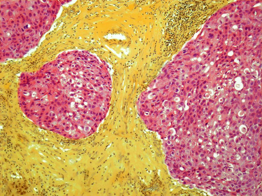 Breast Cancer, Light Micrograph Digital Art by Steve Gschmeissner
