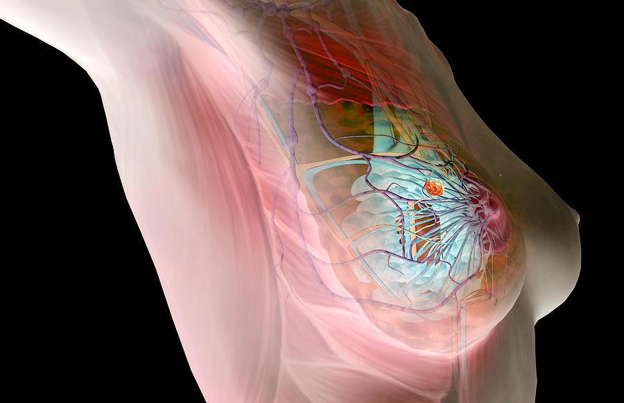 Breast Cancer Digital Art by MedicalRF.com