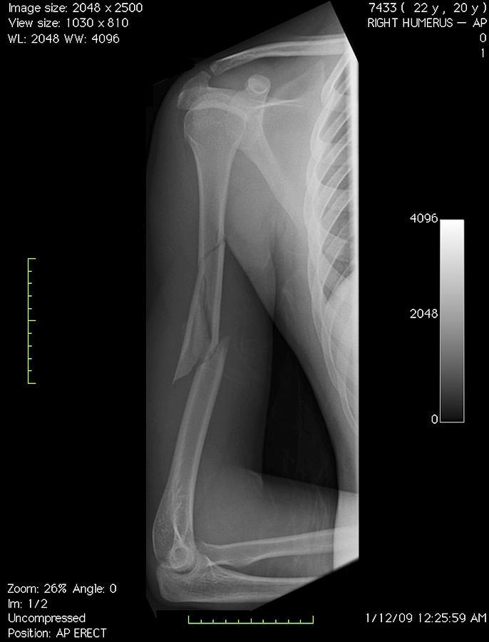 Disorder Photograph - Broken Arm Bone, Digital X-ray by Du Cane Medical Imaging Ltd