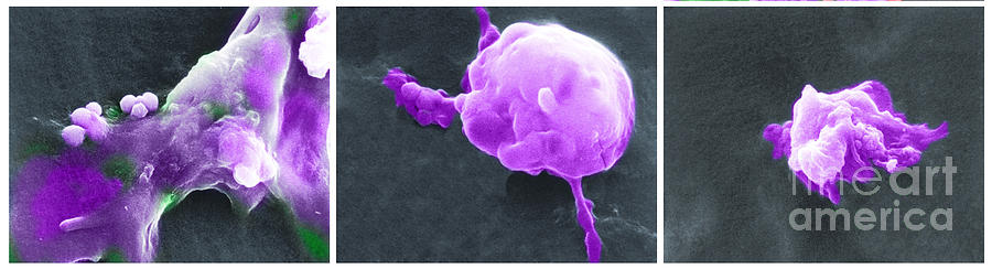 Scanning Electron Micrograph Photograph - Cancer Cell Death Sequence, Sem by Science Source