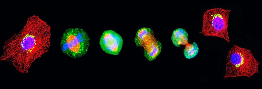 Mitosis Photograph - Cell Mitosis by Thomas Deerinck, Ncmir