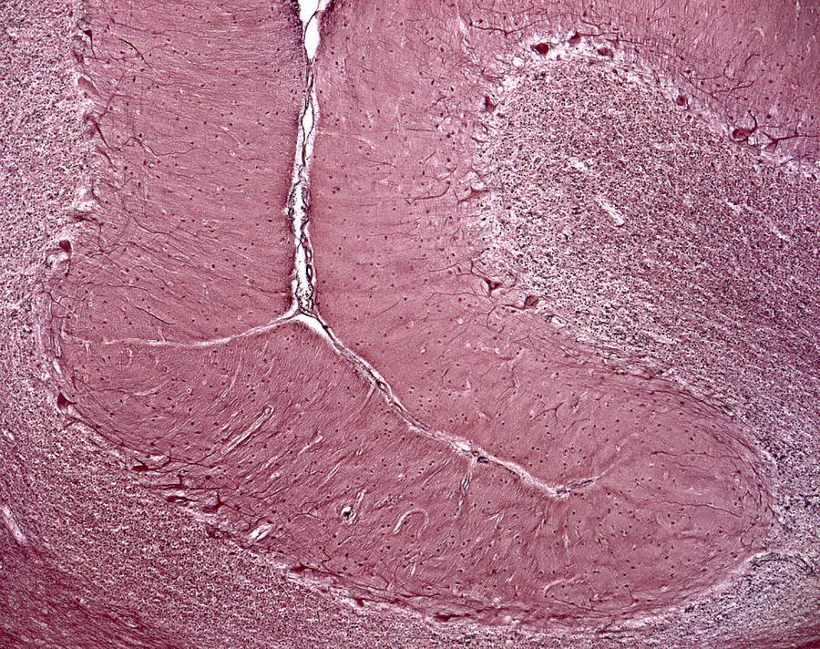 Cerebellum Tissue, Light Micrograph Photograph by Robert ...