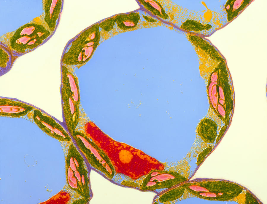 Chloroplasts In Cells Of Zinnia Photograph By Dr Jeremy