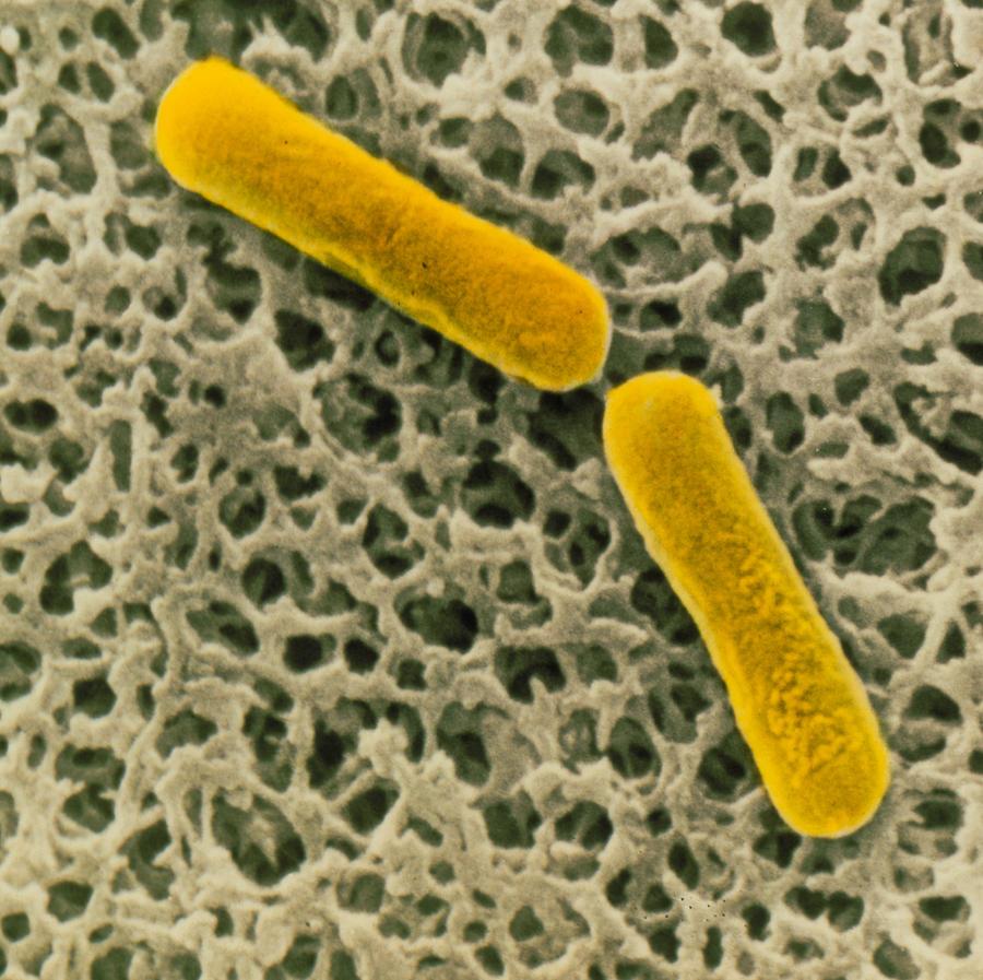 Clostridium Botulinum Photograph - Clostridium Botulinum Bacteria by Cnri