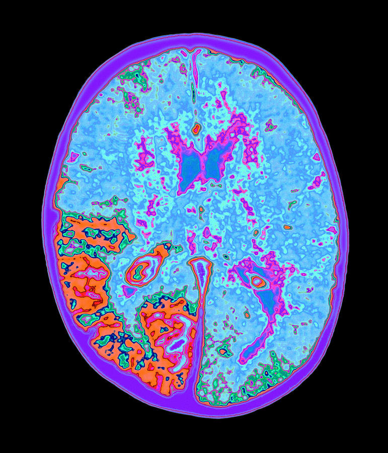 Sturge-weber Syndrome Photograph - Coloured Mri Brain Scan Of Sturge-weber Syndrome by Mehau Kulyk