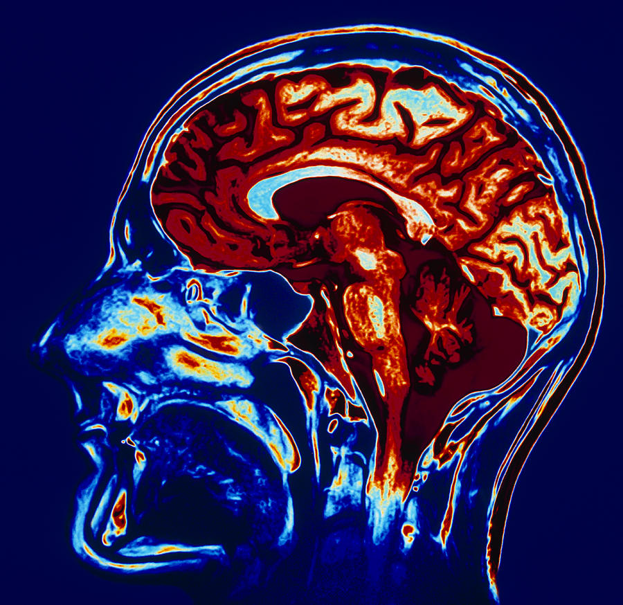 Coloured Mri Scan Of Brain In Sagittal Se Photograph By