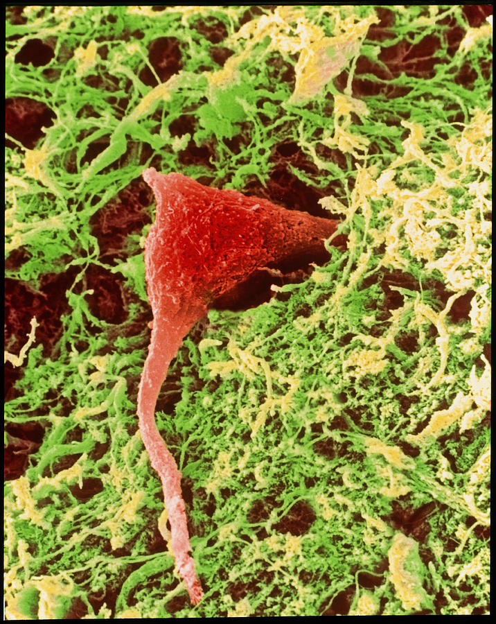 Images Photograph - Coloured Sem Of A Nerve Cell In Brain Tissue by Steve Gschmeissner