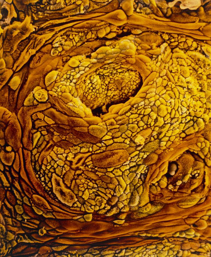 Endometrial Adenocarcinoma Photograph - Coloured Sem Of Adenocarcinoma Of The Human Uterus by Professors P.m. Motta & S. Makabe