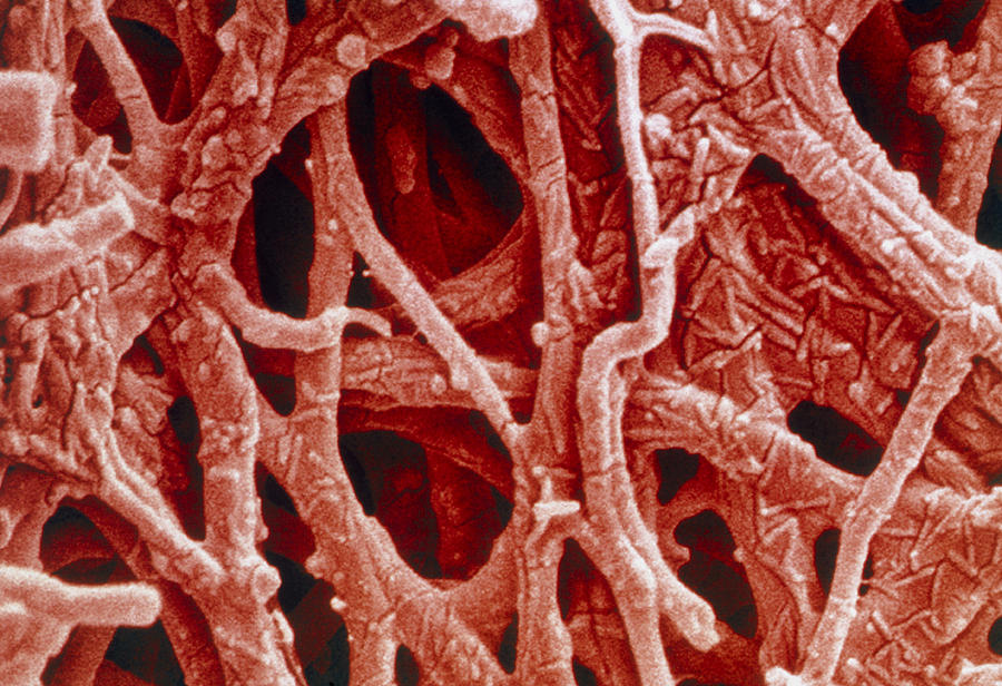 Eggshell Photograph - Coloured Sem Of Internal Membrane Of Hen Eggshell by Power And Syred