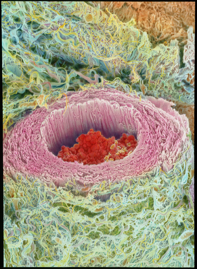 Magnified Image Photograph - Coloured Sem Of Section Through A Human Arteriole by Steve Gschmeissner