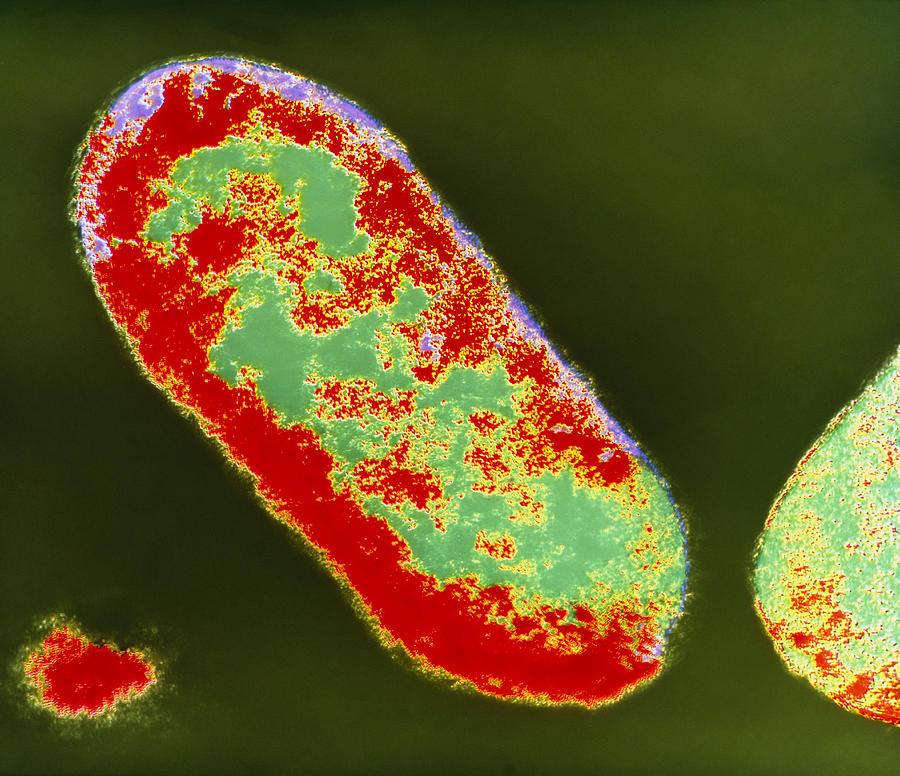 Shigella Photograph - Coloured Tem Of Shigella Sp. Bacteria by London School Of Hygiene & Tropical Medicine