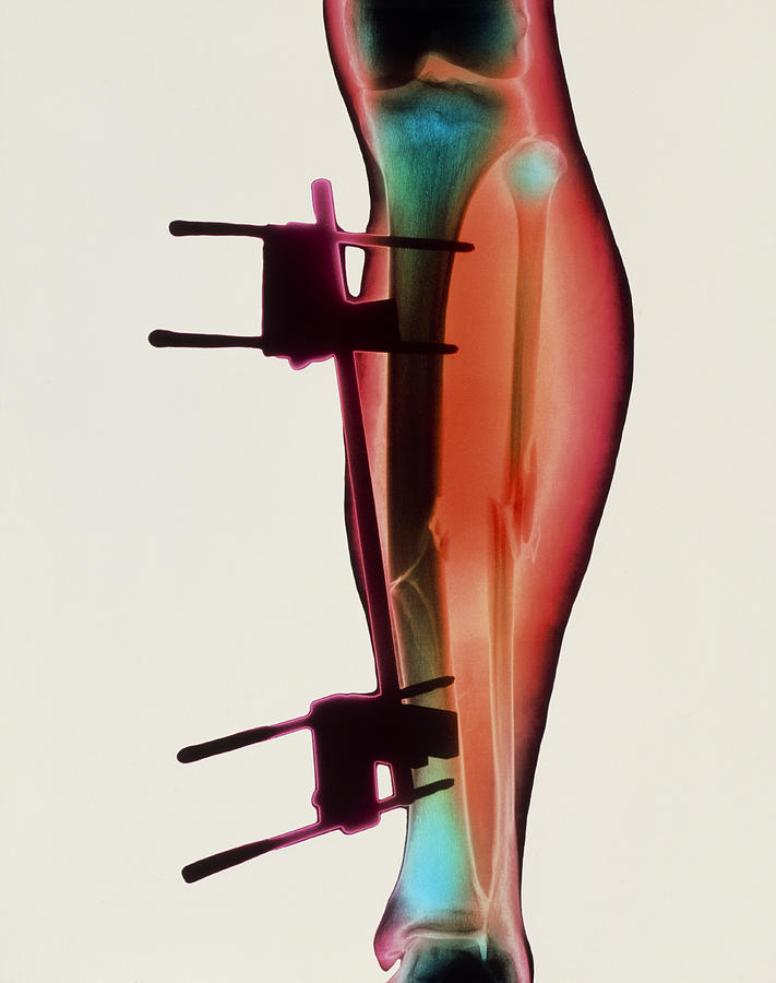 Coloured X-ray Of A Fractured Tibia & Fibula Photograph by