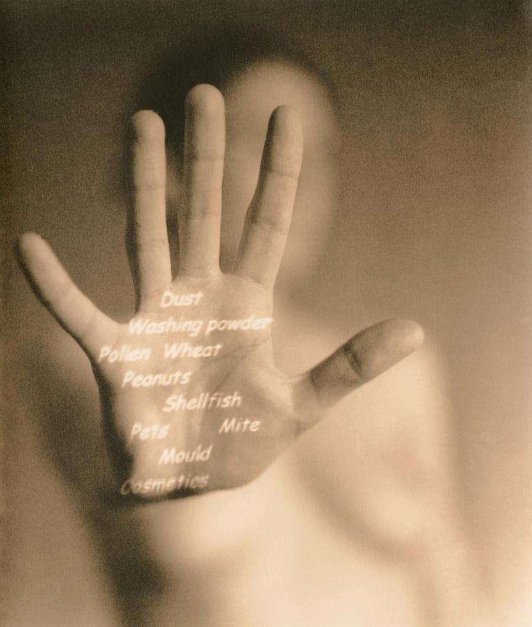 Hand Photograph - Common Allergies by Cristina Pedrazzini