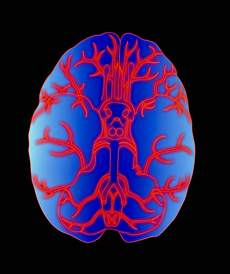 Brain Photograph - Computer Graphic Of Arteries At Base Of The Brain by Pasieka