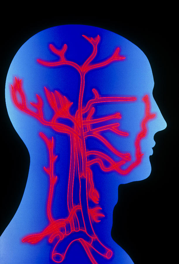 Head Photograph - Computer Graphic Of Head & Neck, Showing Arteries by Pasieka