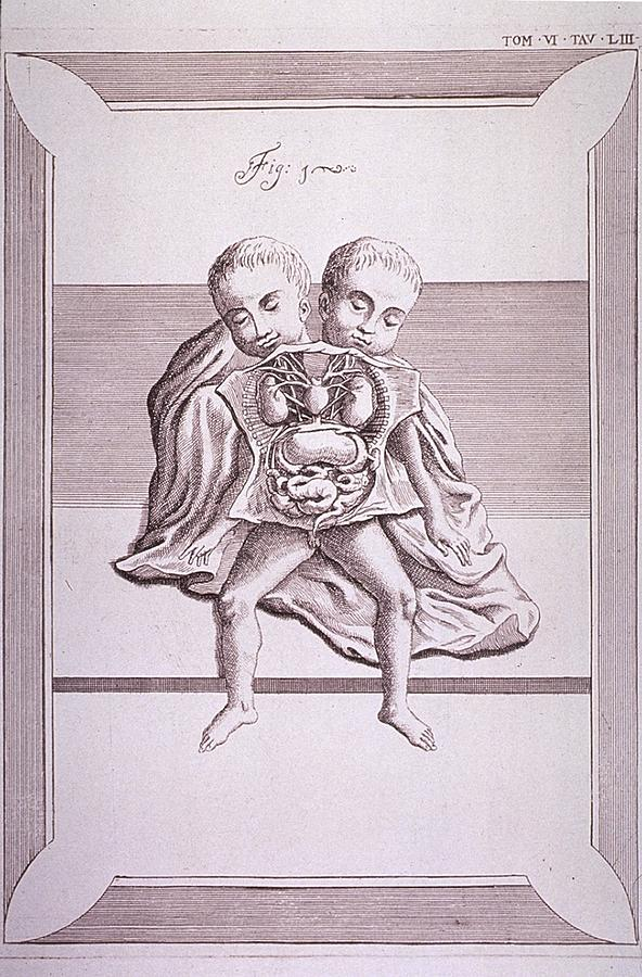 History Photograph - Conjoined Twins With Common Torso by Everett