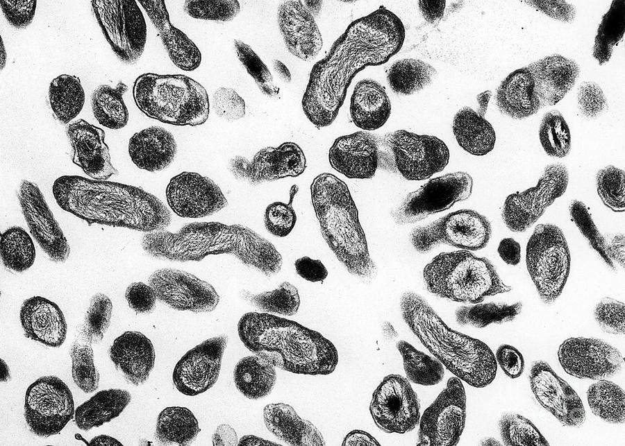 Microbiology Photograph - Coxiella Burnetii Bacteria, Tem by Science Source