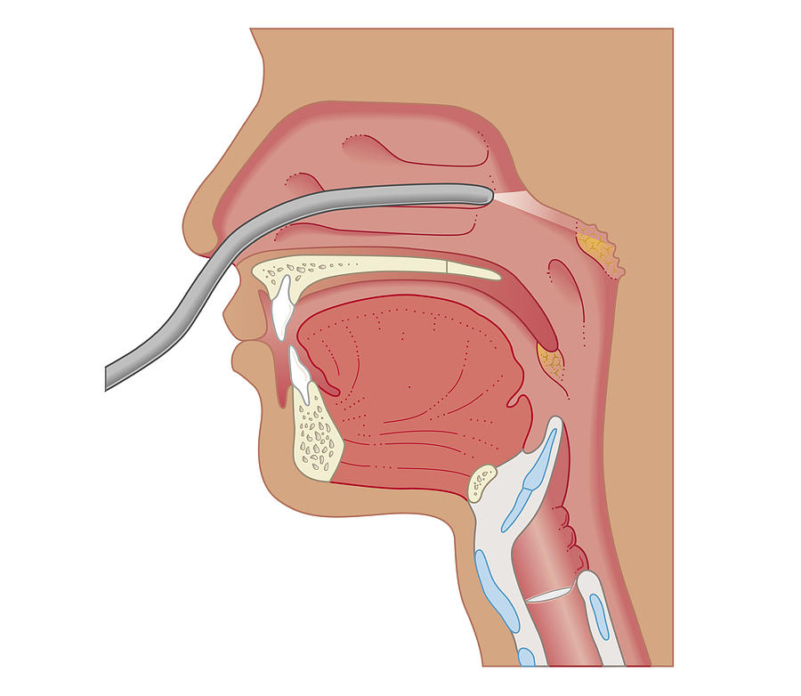 Cross Section Biomedical Illustration Of Endoscopy Of The Nose And ...