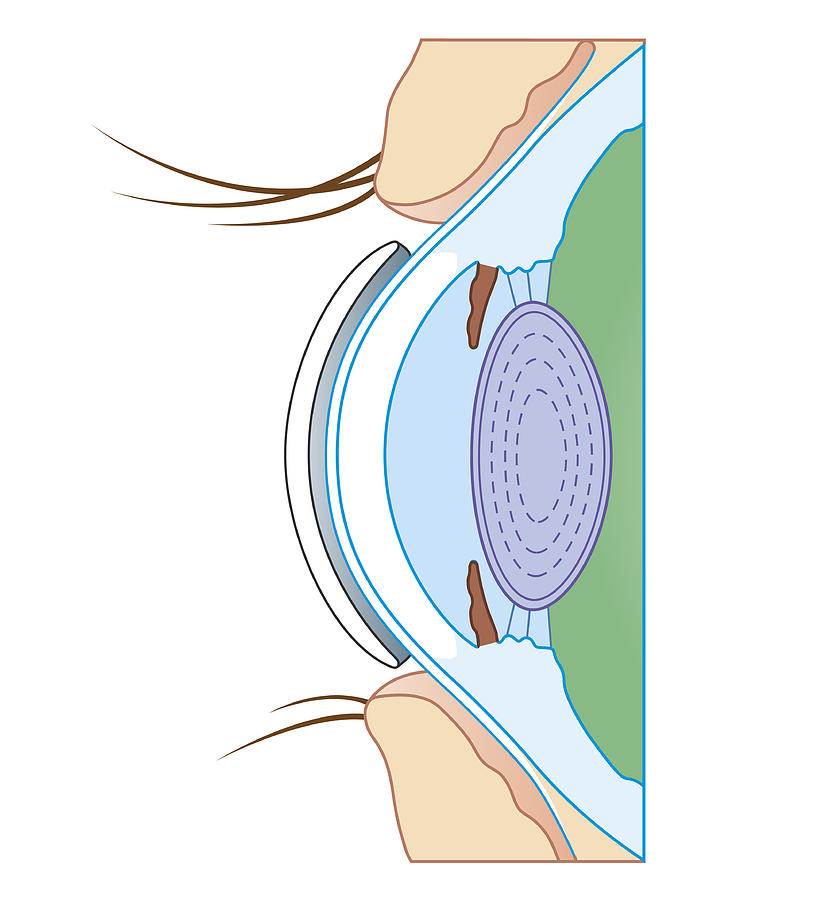 Cross Section Biomedical Illustration Of Soft Contact Lens On Eye Digital Art by Dorling Kindersley