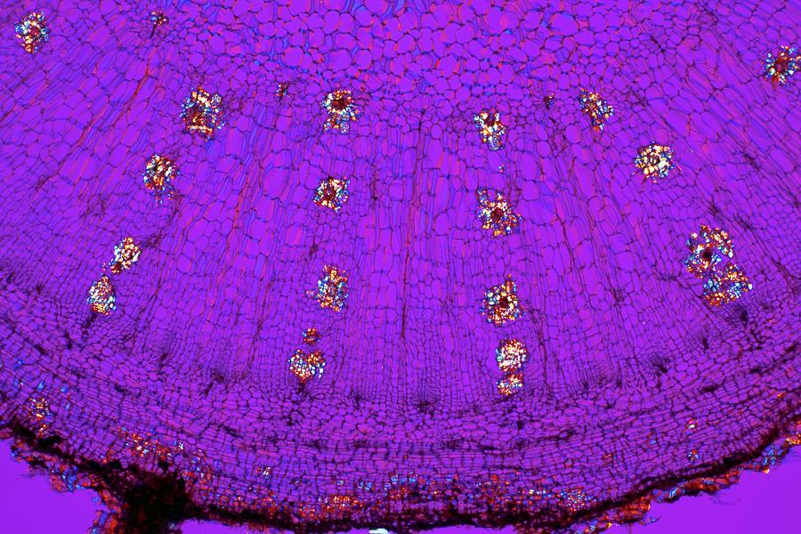 Plant Photograph - Dahlia Tuber, Light Micrograph by Dr Keith Wheeler