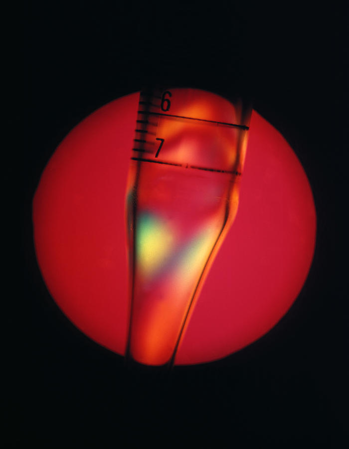 Pipette Photograph - Defective Plastic, Light Micrograph by Mark Sykes