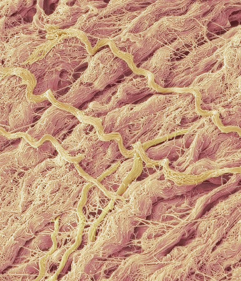 Electron Microscope Photograph - Dense Connective Tissue, Sem by Steve Gschmeissner