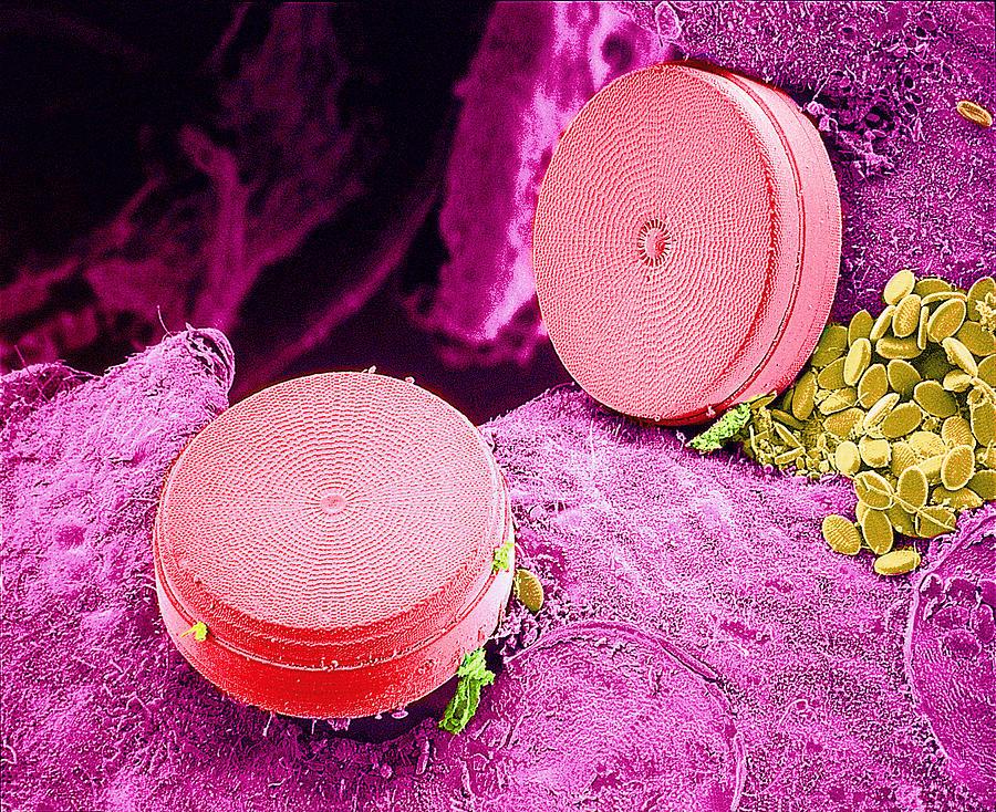 Surface Photograph - Diatom Algae, Sem by Susumu Nishinaga