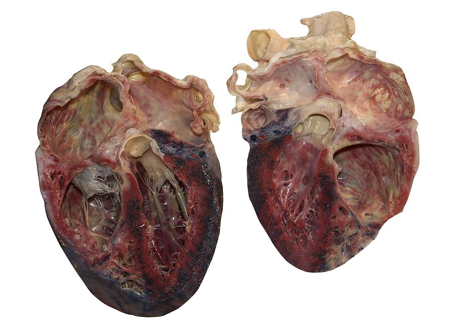 Dissected Human Heart Photograph by Victor Habbick Visions